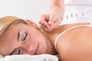 Women laying down getting acupuncture on back Phoenix AZ