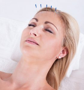 Acupuncture Accurate Acupuncture