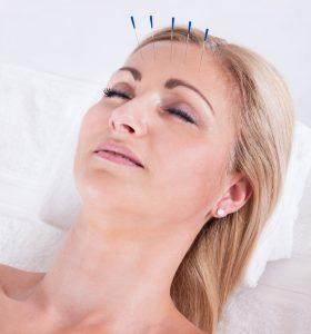 Acupuncture Accurate Acupuncture