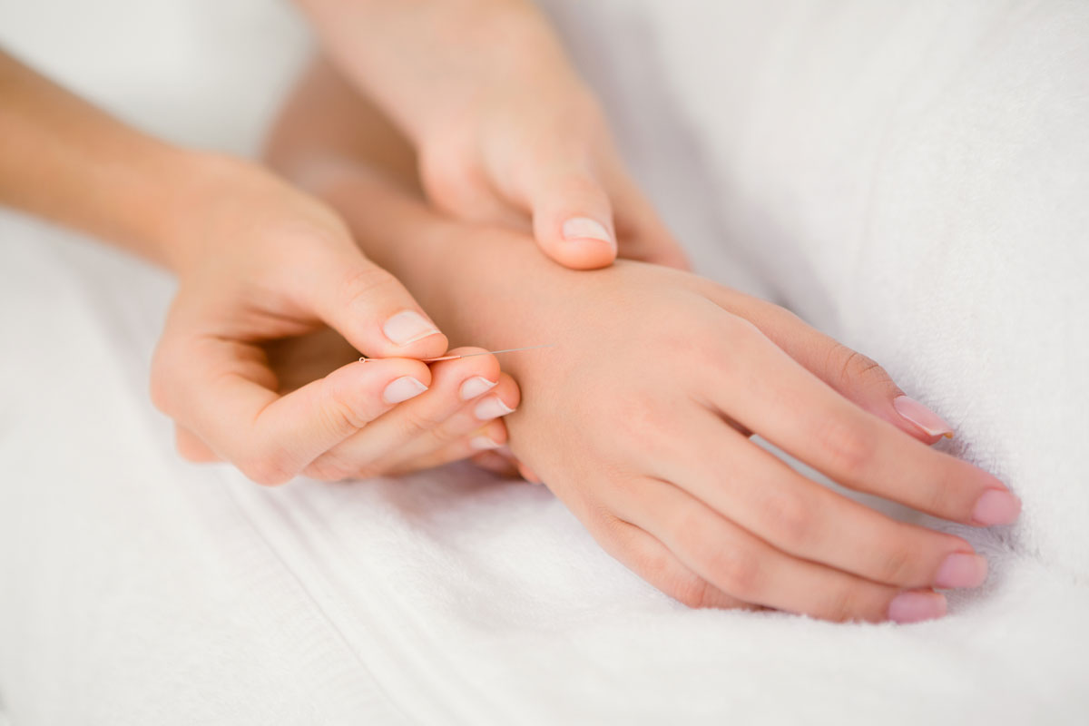 Acupuncture for Rheumatoid Arthritis: What to Expect at Your First Visit foto