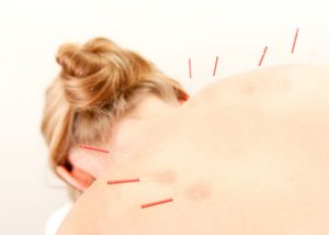Woman getting UTIs Acupuncture treatment, Accurate Acupuncture, Phoenix AZ