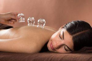 Cupping Procedure Accurate Acupuncture Phoenix AZ