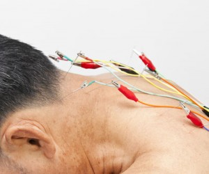 Electro-Acupuncture available at Accurate Acupuncture AZ