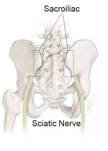 Illustration of hip bone showing sciatic nerve, Accurate Acupuncture, Phoenix AZ